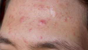 Male with acne on his forehead
