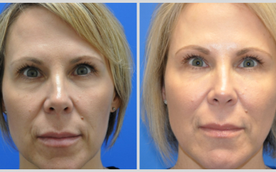 Non-Surgical FaceLifts and Dermal Fillers